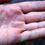 Облазит кожа рук: причины и что делать?